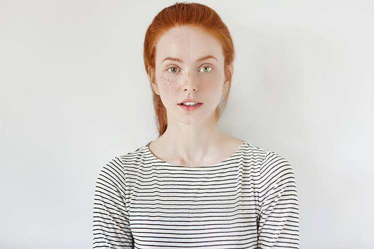 Br24 Blog Natural Retouching: Portrait of a young woman with red hair and freckles, showing the differences between natural image retouching at the left and too much retouching at the right