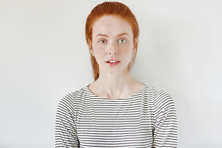 Br24 Blog Natürliche Bildretusche: Porträt einer jungen Frau mit roten Haaren und Sommersprossen, Unterschied zwischen natürlicher Bildretusche links und zu viel Retusche rechts